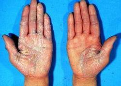 手部患上牛皮癣原因