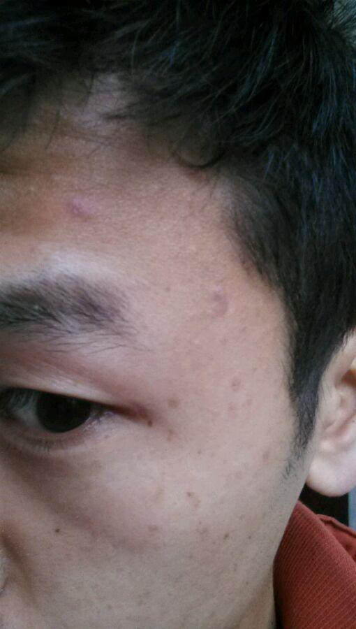 面部牛皮癣如何护理
