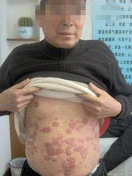 导致男性银屑病的发病因素