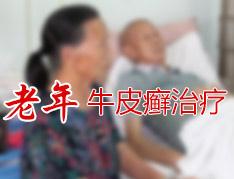 怎样有效的治疗中老年银屑病